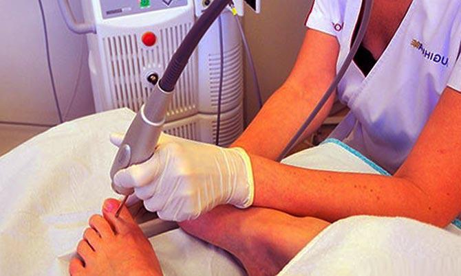 эффективность лечения грибковой инфекции с помощью лазера