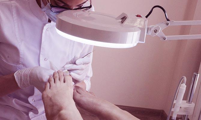 Дерматологическое заболевание грибок ногтей выявление дерматологом
