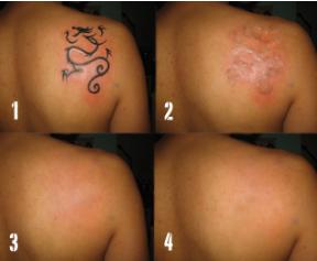 лазерное удаление тату до и после фото